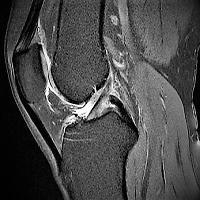 Radiologie Norderstedt MRT Kernspintomographie MRA Angiographie