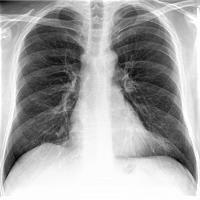 Radiologie Norderstedt Digitales Röntgen